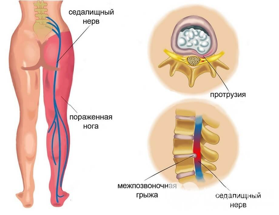 причини запалення сідничного нерва