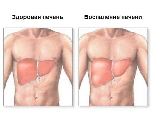 Причини Виникнення и лікування запаленою печінкі