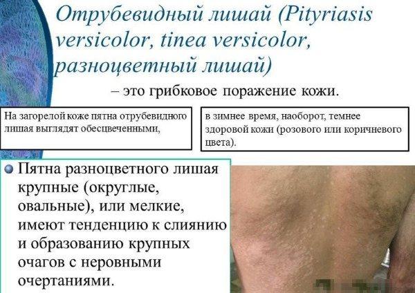 Причини свербіння, якщо свербить тіло: червоні, рожеві плями, пухирі, висип як комарині укуси. Фото з поясненнями