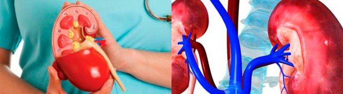 Застосування димексиду при порушеннях функції нирок