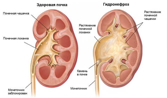 приклад гідронефрозу