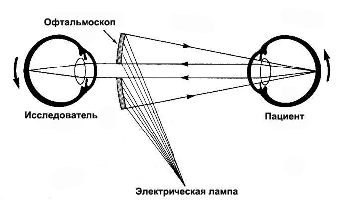 принцип офтальмоскопії