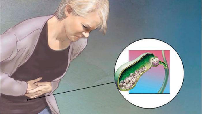 напад жовчнокам'яної хвороби