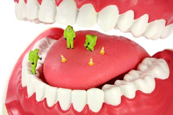 Прісутність бактерій в роті