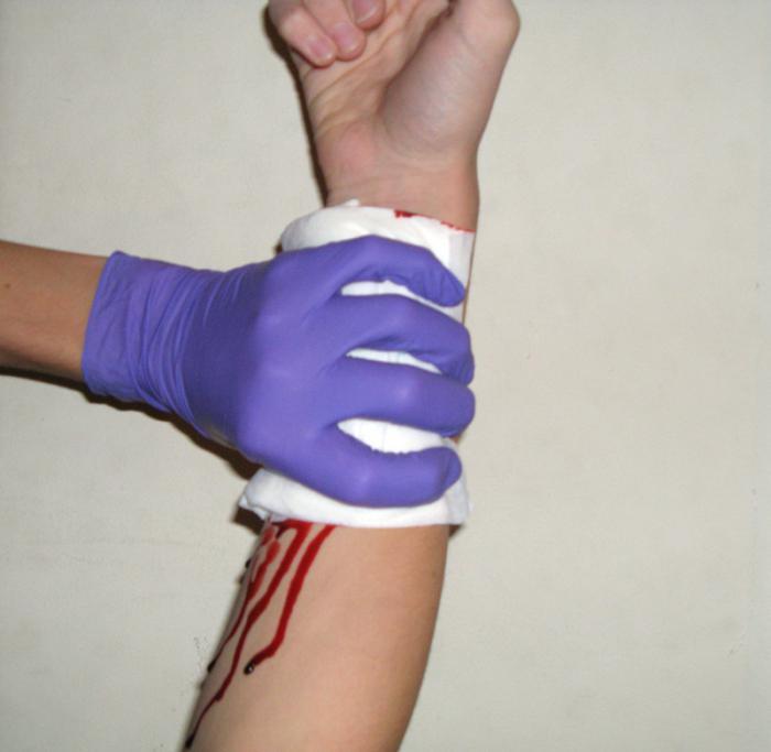 ознаки артеріальної кровотечі