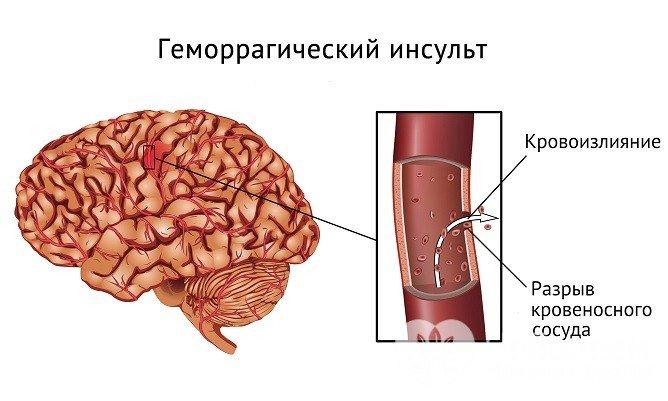Ознака геморагічного інсульту