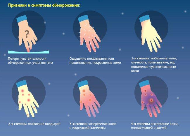 Ознака та симптоми обмороження