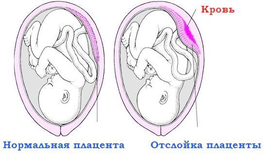 Ознака відшарування плаценти