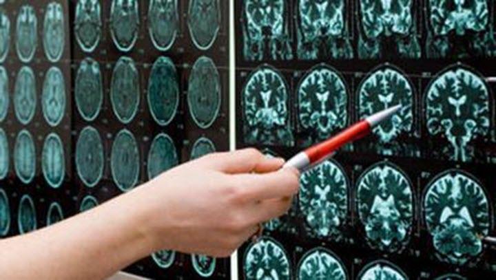 ознаки посттравматичної енцефалопатії