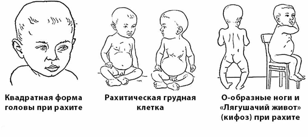 ознаки рахіту у немовлят 2 місяці