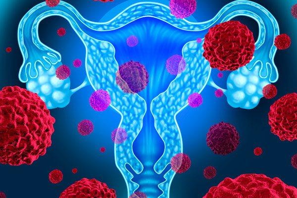 ознаки раку шийки матки на ранній стадії развтия