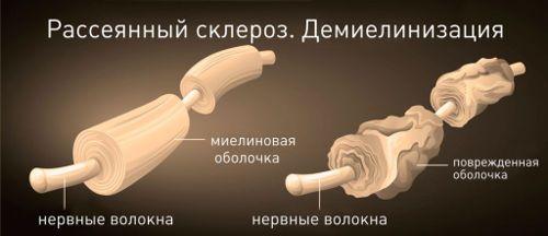 Ознаки розсіяного склерозу