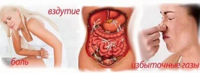 Ознака роздратованого кишечника