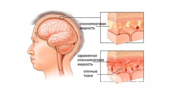 Ознаки серозного менінгіту