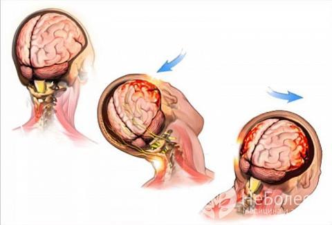 Ознаки струсу головного мозку