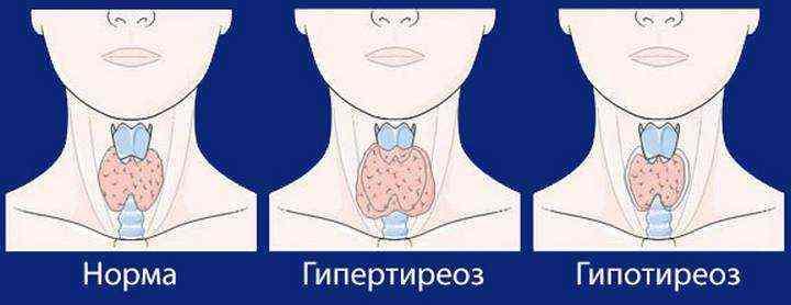 ознаки захворювання щитовидки у жінок
