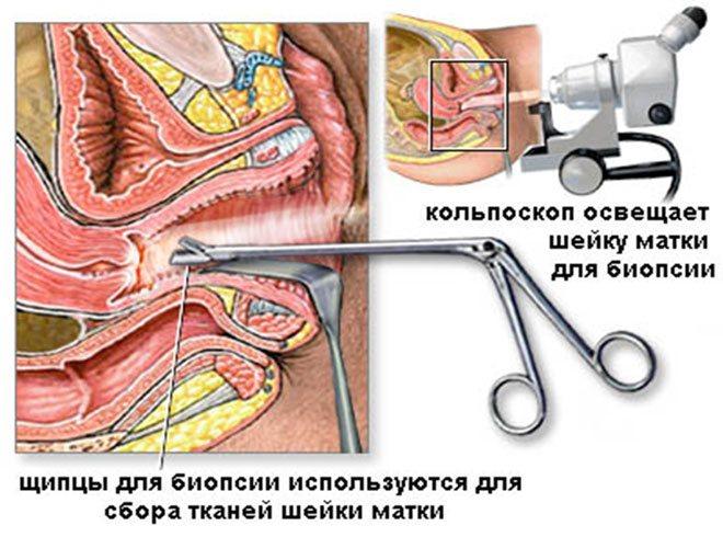 Процедура з біопсією