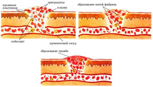процес згортання крови