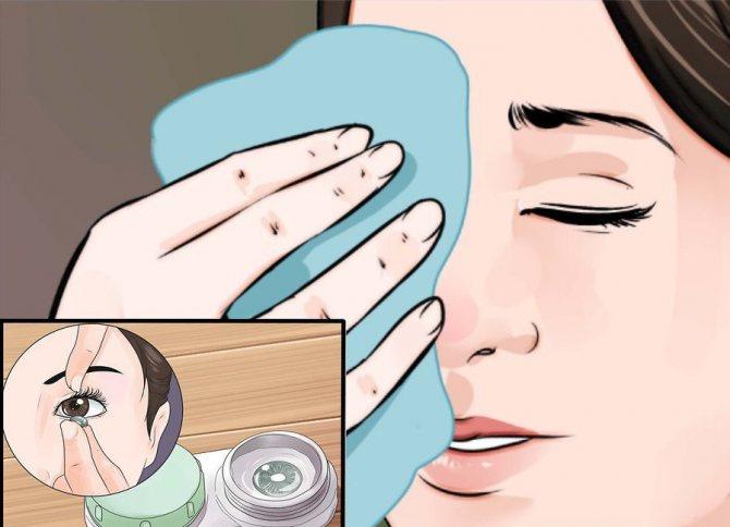 профілактика нітчастіх кератиту