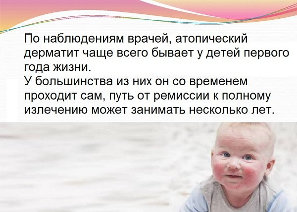 Чи проходить атопічний дерматит у дітей з віком