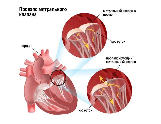 Пролапс мітрального клапану