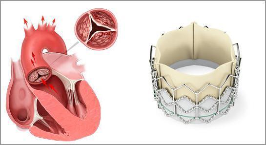 протезування аортального клапана