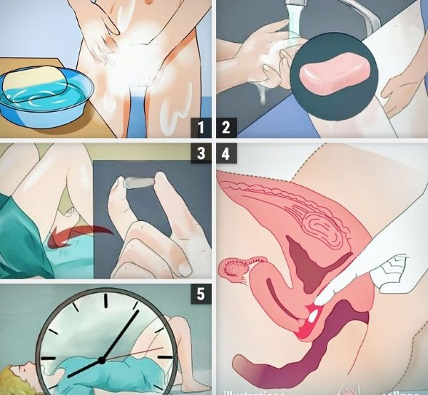 Протізапальні свічки в гінекології для жінок при запаленні прідатків, яєчніків, цістіті, від поліпів Шийки матки.  Список препаратів, назви