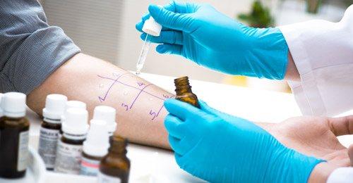 проведення алергопроби на шкірі