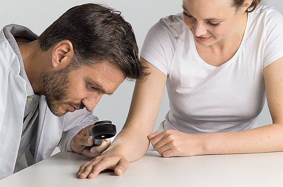 проведення дерматоскопія