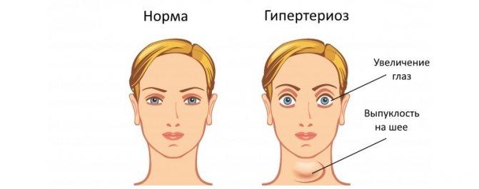 Прояви збільшення щитовидної залози