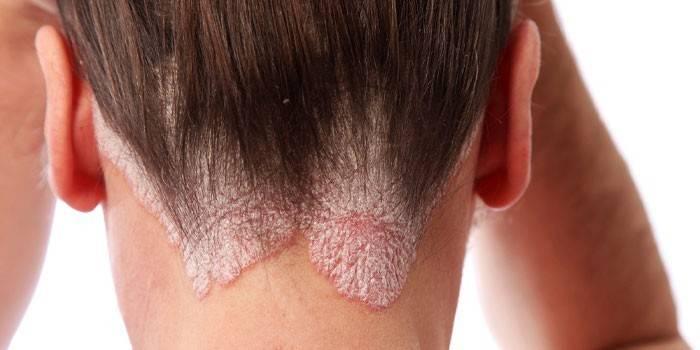 Псоріаз на шкірі голови