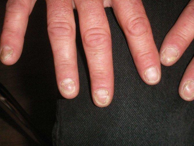 псоріазних артрит