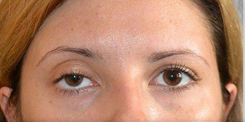 Птоз - можлива причина припухлості під очима