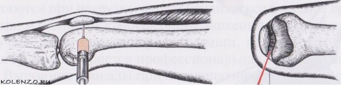 пункція колінного суглоба ПРИ синовите