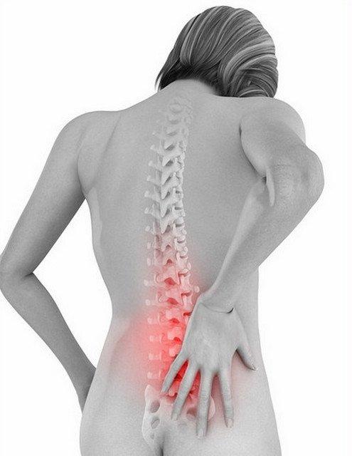 Радікуліт приносити пацієнтові болю у верхній части спини