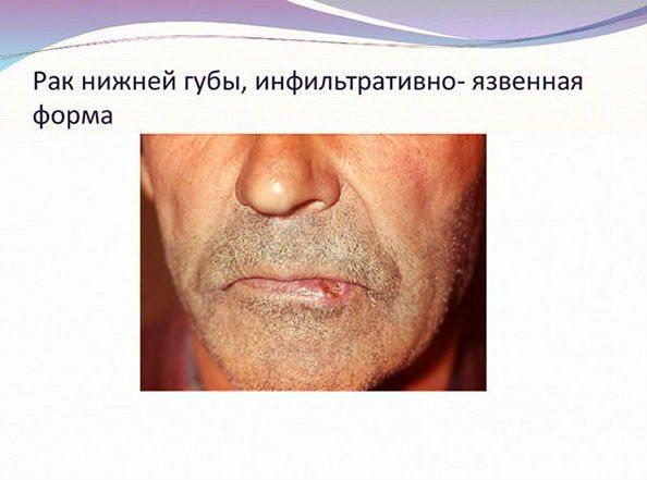 рак губи у чоловіка