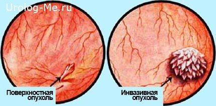 Рак Січових міхура: симптоми, ознака, лікування профілактика