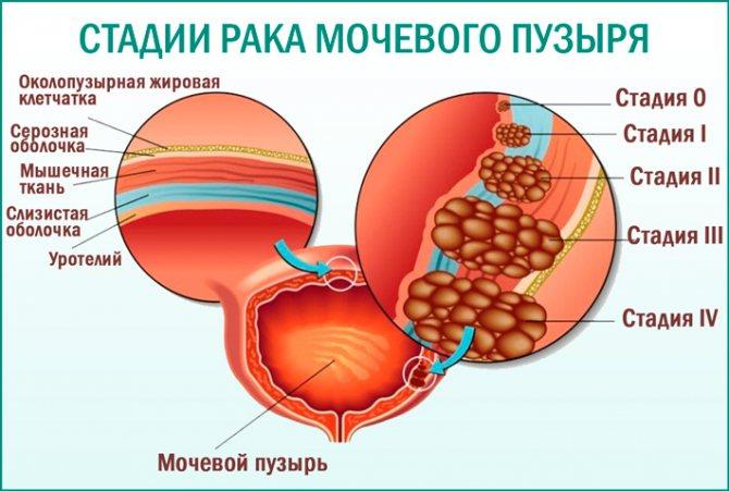 Рак сечового міхура: стадії