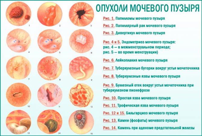 Рак сечового міхура: види раку