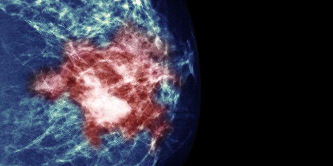 рак молочної залози в європі