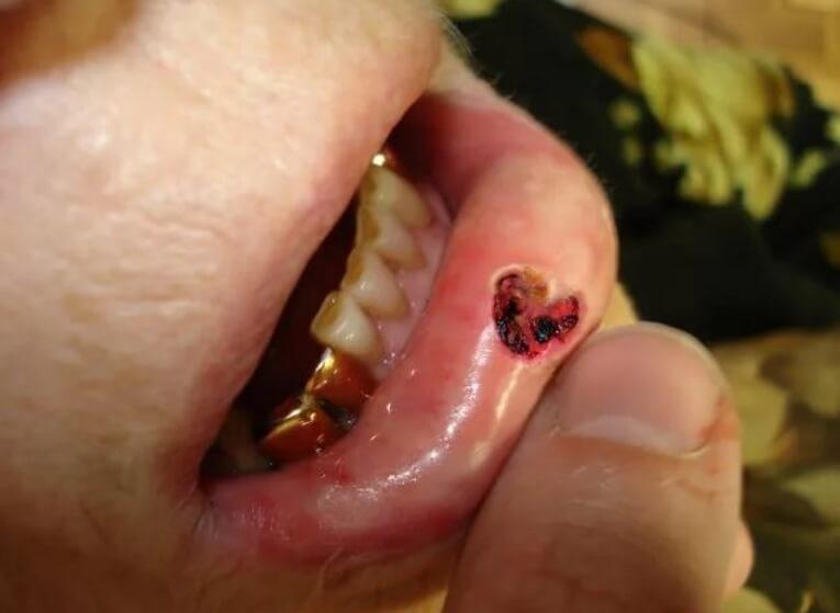 Рак нижньої губи