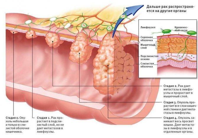рак прямої кишки