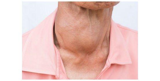 рак щитовидної залози