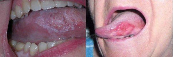 рак язику