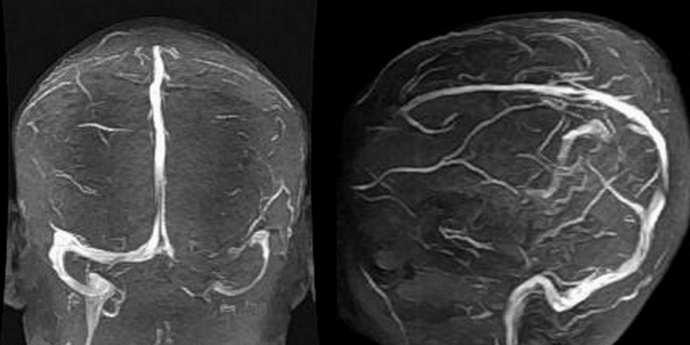 Розлад правого поперечного синуса