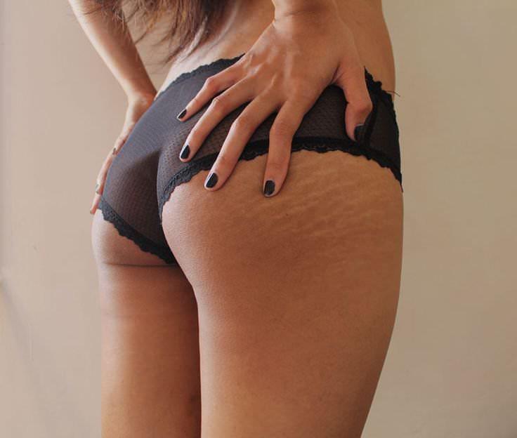 Розтяжки на шкірі лікування розтяжок причини виникнення