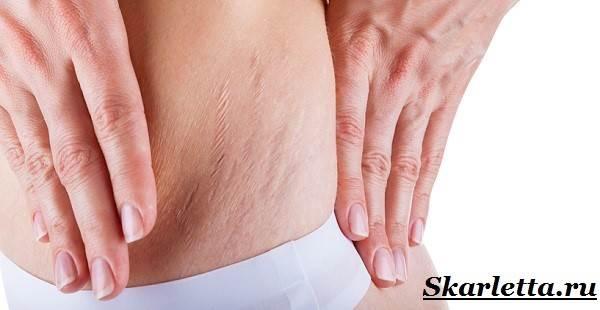 rastyazhki na kozhe prichiny kak izbavitsya ot rastyazhek 1 - Як лікуваті розтяжка на шкірі