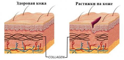 Розтяжка на схудлому тілі.  Причини з'явилася розтяжок на жівоті, грудях и їх Зовнішній вигляд