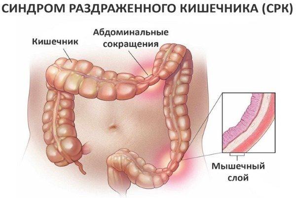 Роздратований кишечник. Симптоми і лікування у дорослих народними засобами, препарати, дієта
