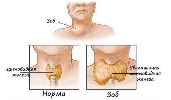 розмір щитовидної залози зоб і норма